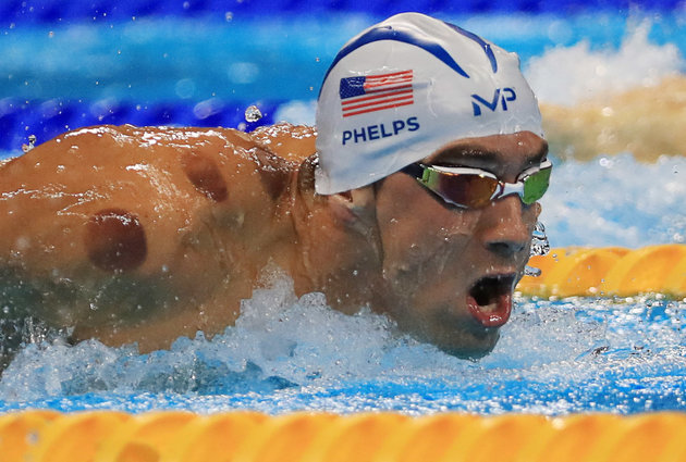 2016 Rio Olympics - Swimming - Preliminary - Men's 200m Butterfly - Heats - Olympic Aquatics Stadium - Rio de Janeiro, Brazil - 08/08/2016. Michael Phelps (USA) of USA is seen with red cupping marks on his shoulder as he competes. REUTERS/Dominic Ebenbichler FOR EDITORIAL USE ONLY. NOT FOR SALE FOR MARKETING OR ADVERTISING CAMPAIGNS.